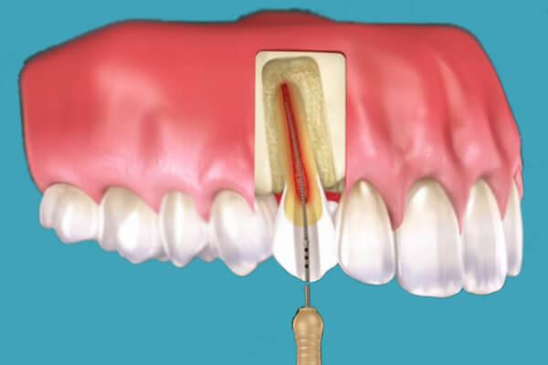 Endodonție Timisoara