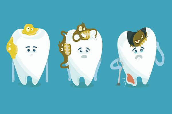 Odontoterapie (tratamentul cariilor) Timisoara