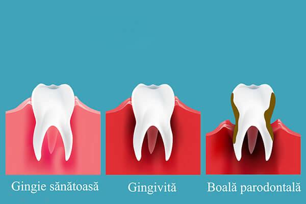 Parodontologie Timisoara