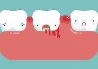 Tot ce trebuie sa stii despre sangerarile gingivale