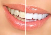 Albirea profesionala - Acasa sau in cabinetul stomatologic?